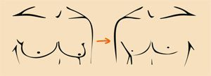 mengecilkan payudara pria gynecomastia