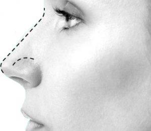 Operasi hidung rhinoplasty