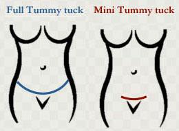 operasi perut tummy tuck